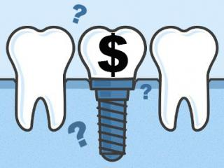 Dental-Implant-Costs-Post