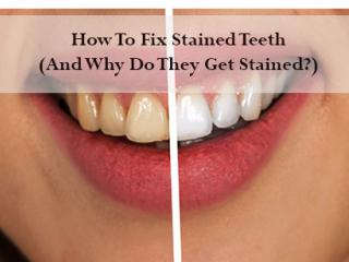Fix-Stained-Teeth-Guelph