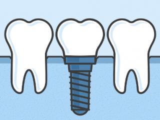 dental-bridges-in-guelph-480x286