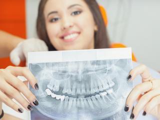dental-implants-guelph