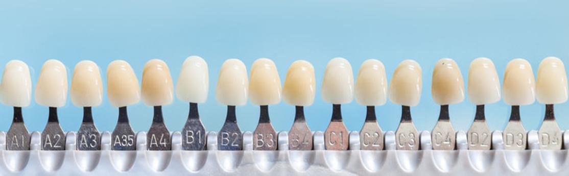 porcelain veneers stonegate dental